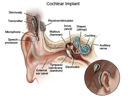 Cochlear Implant